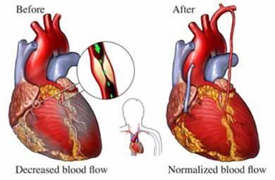 جراحی قلب