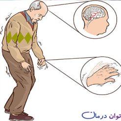 تحقیق درباره بیماری پارکینسون