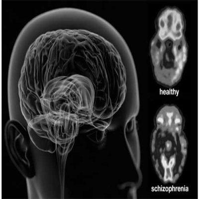 مقاله در مورد اسکیزوفرنی